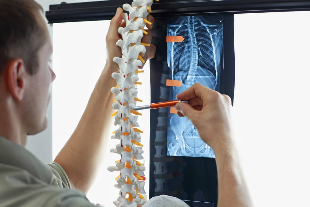 Doctor analyzing a spine model for pinched nerve assessment in the back.