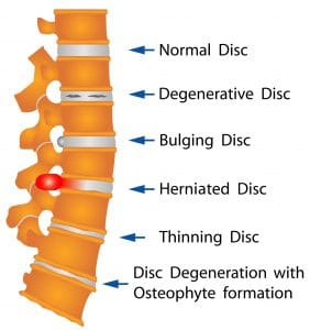 Spine Disc Disorder chart shows herniated disc, bulging disc, and degenerative disc disease